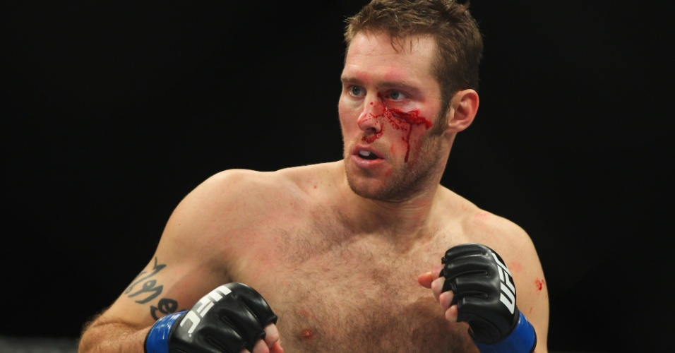 Canadense Nick Penner sofre corte no rosto em combate pelo UFC on FX 2