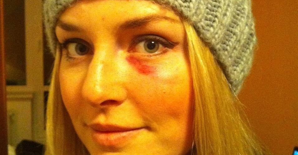 Esquiadora Lindsey Vonn mostra olho roxo após queda em prova de slalom