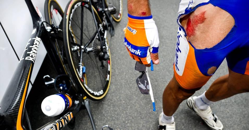 Espanhol Juan Manuel mostra os ferimentos provocados por uma queda da bicicleta durante o Tour de France