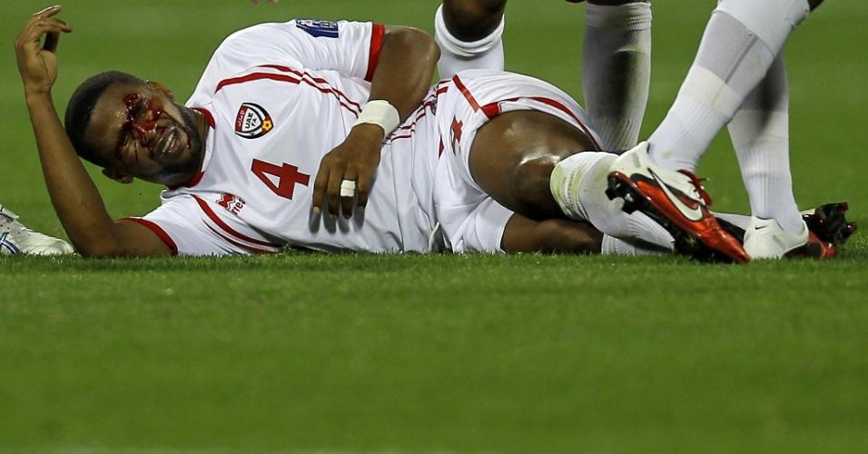 Meia Subait Khater, do Emirados Árabes Unidos, cai no chão sangrando após choque com jogador do Iraque