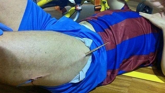 09.fev.2012 - Jose P., jogador de futsal da Espanha, teve a perna perfurada por pedação da quadra