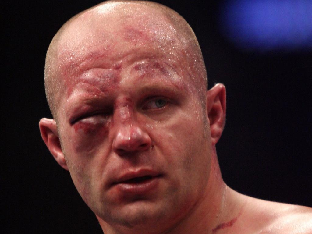 Com olho inchado devido aos golpes recebidos, Fedor perde para Pezão