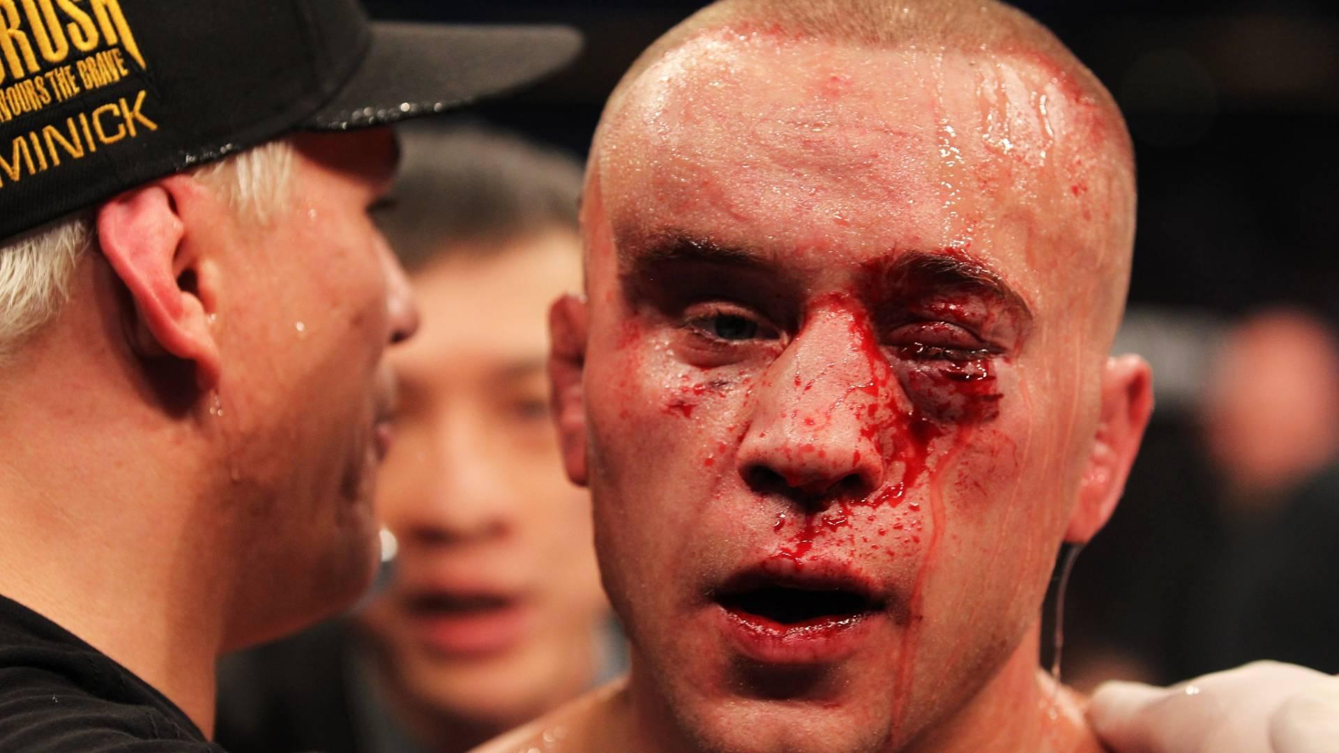 Canadense Mark Hominick é consolado após derrota para José Aldo no UFC 129