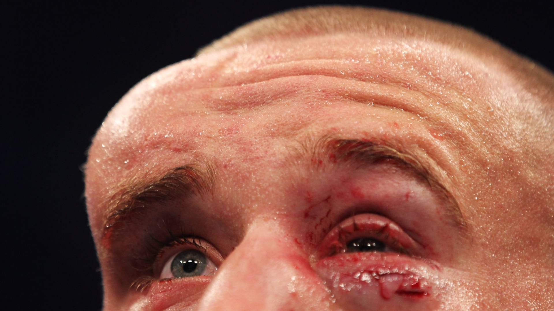 Detalhe da testa do canadense Mark Hominick após derrota para o brasileiro José Aldo