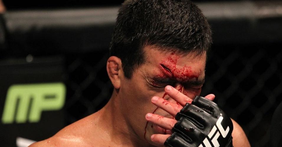 Lyoto Machida sofreu um corte profundo na luta contra Jon Jones